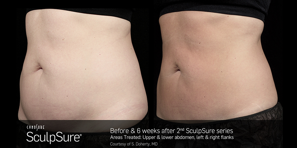 6 weeks after the second SculpSure treatment.